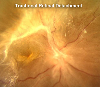 retina pulled up after rd surgery