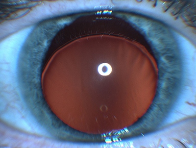 glaucoma caused by steroid eye drops