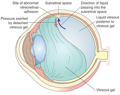 rd_graphic Ocular Schematic Diagram on